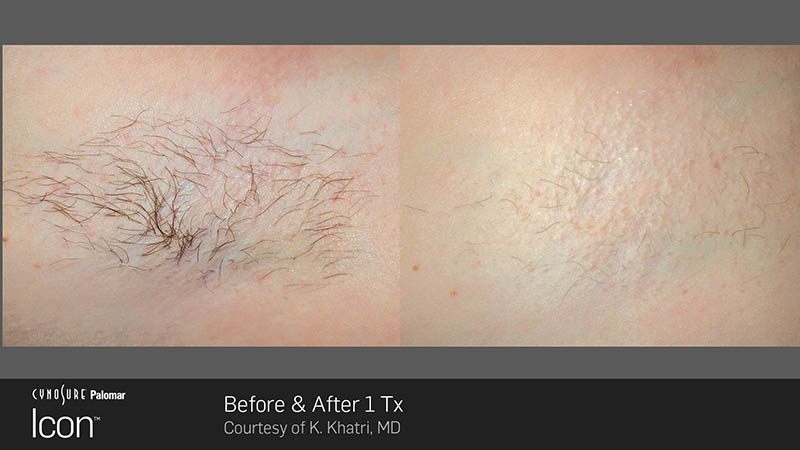 Laser hair removal under the arm before and after
