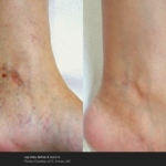 Laser Leg Vein Removal on The Ankles